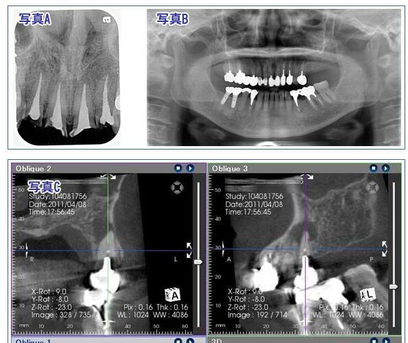 歯科レントゲンの被爆はどうなん??